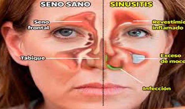 Infeccion sinusitis remedios caseros